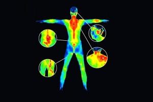 exemplu de termografie